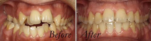 Crowding before and after braces