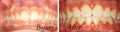 deepbite before and after braces