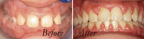 protruding teeth, before and after braces