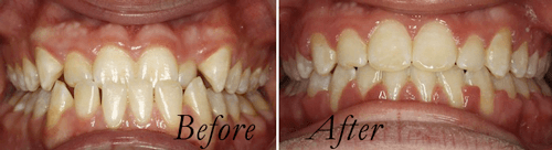 underbite,  before and after braces