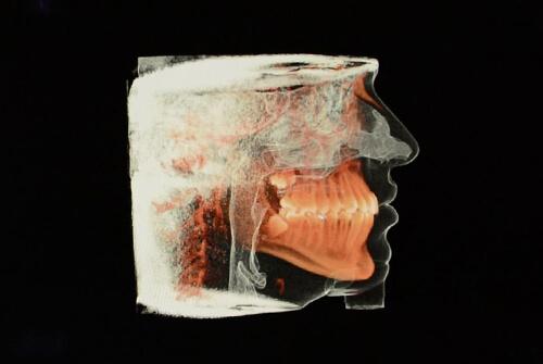 3D Dental Imaging